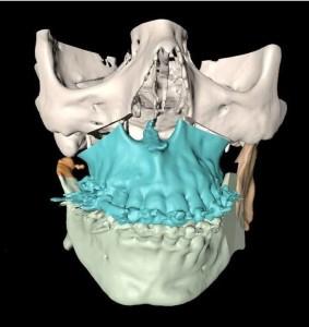 Planificación virtual de cirugía maxilofacial
