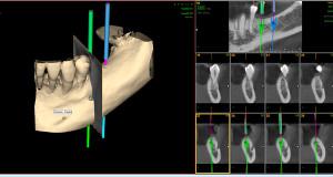 Cirugía minimamente invasiva
