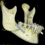 Imagen del material utilizado en esta cirugía