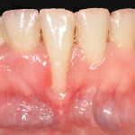recesion-gingival-inicial