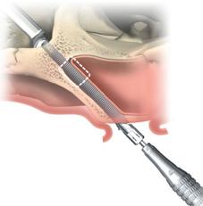 Técnica de inserción de implante cigomático