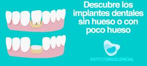 Descubre los implantes dentales en maxilar sin hueso o con poco hueso