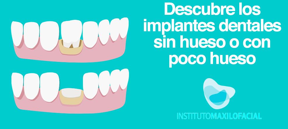 Implantes dentales sin hueso o con poco hueso