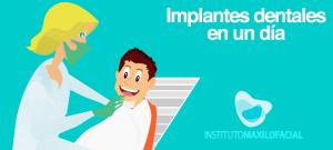 Implantes dentales inmediatos en un día, ¿es posible?