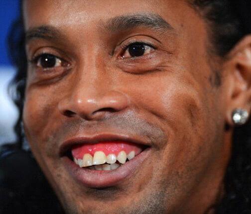 Caso típico de sonrisa gingival con maloclusión dental asociada