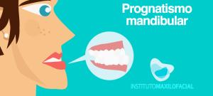 Prognatismo mandibular, deformidad de reyes