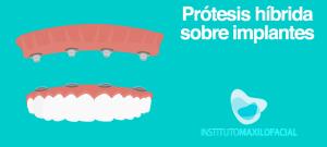 prótesis híbrida sobre implantes