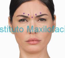 Lugares de aplicación de la toxina botulinica para las arrugas del entrecejo