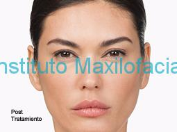 Desaparición de arrugas faciales tras el tratamiento con toxina botulínica.