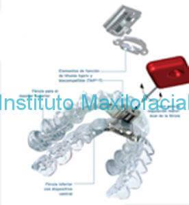 Dispositivo de Avance Mandibular