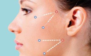 Rejuvenecimiento facial sin cirugía.