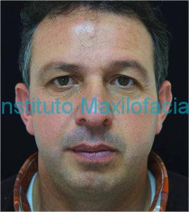 Clinica-frontal-post-web