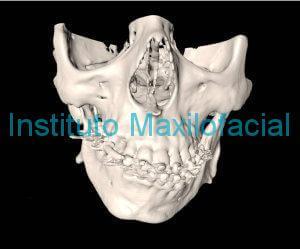 Deformidad Dentofacial