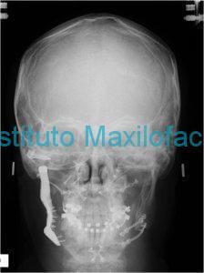 radiologia-post-frontalweb