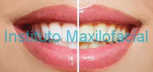 Blanqueamiento dental en clinica