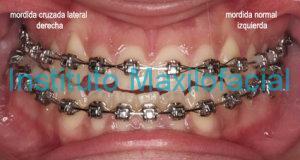 Mordida Cruzada Derecha: Los dientes de arriba, maxilar superior, muerden por dentro de los de abajo , mandíbula en el lado derecho. Lado izquierdo oclusión normal.