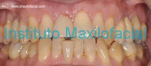 Colocación de prótesis provisional en el mismo acto de la cirugía. Prostodoncista Dr. Sánchez Castilla