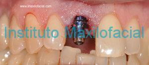 Colocación de implante dental de forma simultanea a la extracción