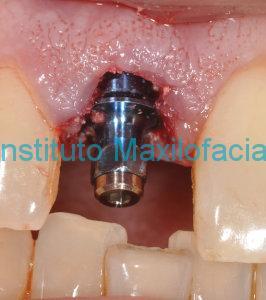 Carga inmediata implantes dentales Badajoz
