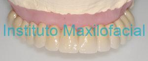 Implantes Dentales en Badajoz