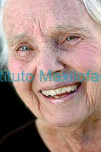 Osteoporosis e implantes dentales.